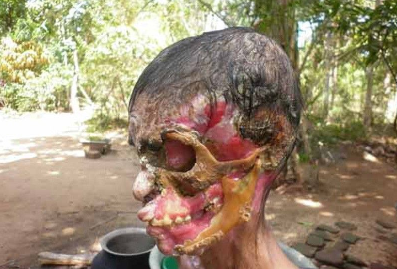 Тропическая инфекция