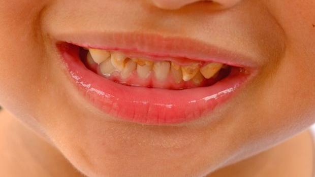 Penyebab Karies Gigi Pada Anak Balita , Usia Sekolah dan Perawatannya