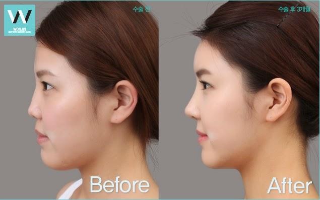 sebelum dan sesudah operasi plastik hidung di rumah sakit bedah plastik wonjin