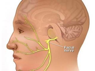 Ritidoplastia melhorando os efeitos da Paralisia Facial Periférica