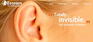 Hay momentos y emociones que no se pueden describir con palabras, aunque en su caso así fue, su nombre es Sloan Churman y es una joven de 29 años que nació sorda, durante toda su vida utilizó la lectura de los labios como recurso para entender lo que otras personas le querían comunicar. Ahora mediante un implante especial que se basa en las vibraciones del tímpano, consigue hacer que las personas que lo portan puedan volver a oír con un alto grado de nitidez, Sloan ha escuchado por primera vez su voz y su reacción al escucharla simplemente se traduce