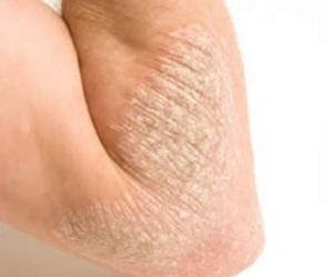 Efficient Home Remedies to Cure Eczema