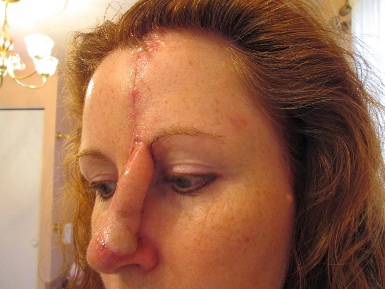 Les tatouages dangereux pour la peau? Topsante  - Tatouage Et Cancer De La Peau