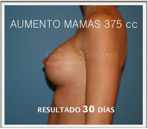 aumento_mamas_madrid