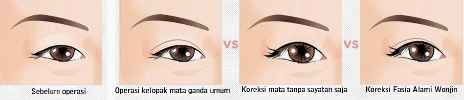 Perbandingan operasi plastik mata umum vs operasi plastik mata di Wonjin