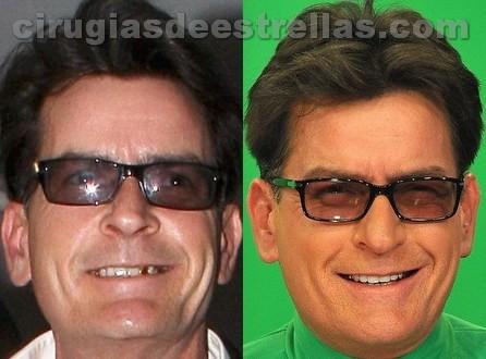 Antes y después de los dientes de Charlie Sheen