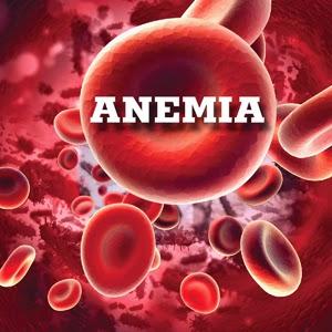 Pengobatan Alternatif Penyakit Anemia