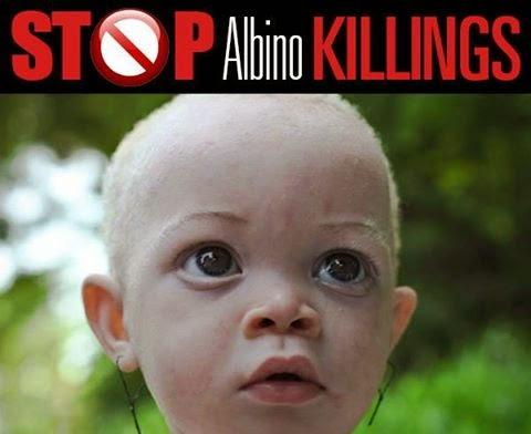 albinisim