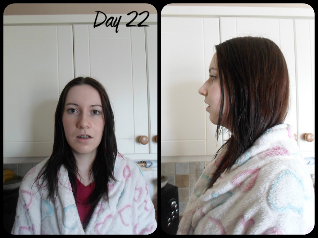 My jaw surgery and I..: Day 22: Spasms, pain and relapse