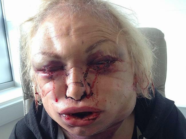 Wajah Kellie Maloney setelah melakukan operasi plastik