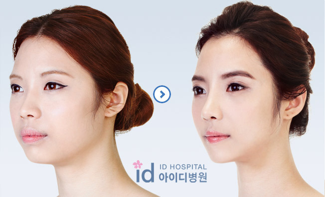 ID Hospital Korea Plastic Surgery: [Id hospital korea] What is ...
