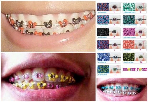 how to put fake braces on a picture