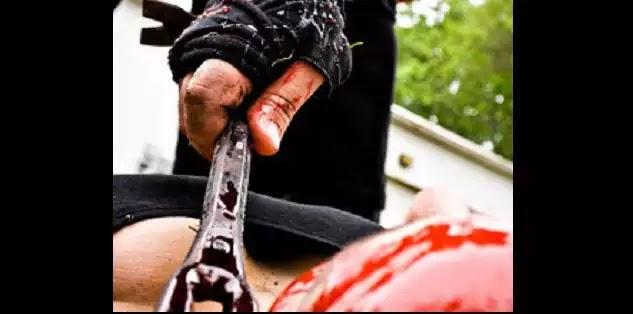 Αγρίνιο- Του άνοιξε το κεφάλι με λοστό για μια θέση... πάρκινγκ!