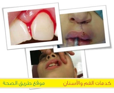 الملاعب أو المدارس غير المأمونة أو حوادث المرور أو العنف أسباب كدمات الفم