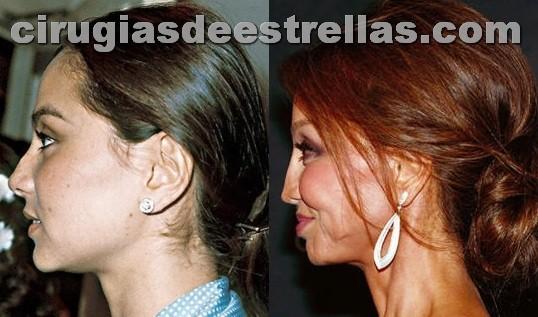 Isabel Presley antes y después de la rinoplastia