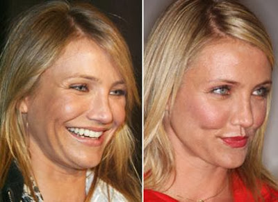 Cameron Diaz Plastic Surgery Breast Implants, Nose Jobs ...