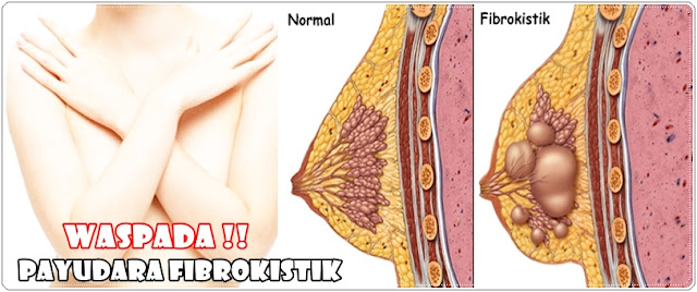 Cara Pengobatan Herbal Payudara Fibrokistik