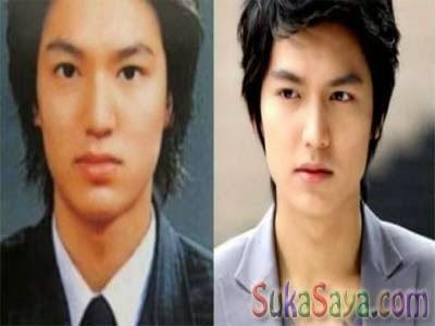 Lee Min Ho Mengaku Tak Pernah Operasi Plastik