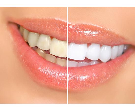 Избелване на зъби със сода