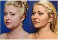 Face with lift surgery