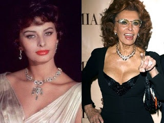 sophia loren plastic surgery before and after facelift and