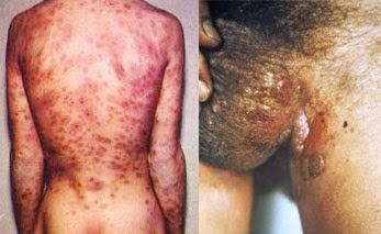 Obat Sipilis Pada Pria