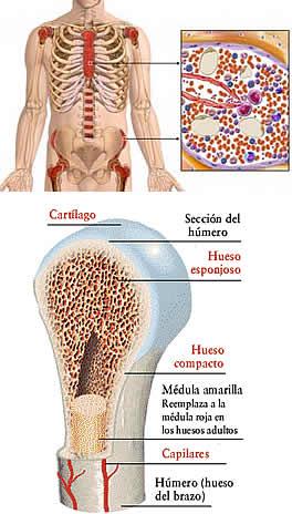 Cancer en la sangre o leucemia