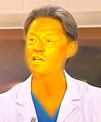 gul i ansiktet