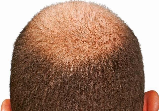 Peinados para calvos
