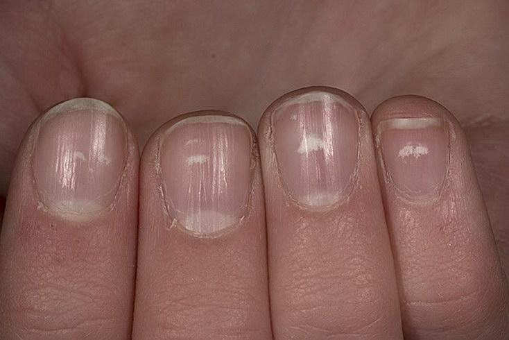 Как сделать белый под ногтями