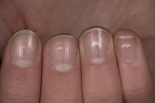 Leukonychia fingernail white nails