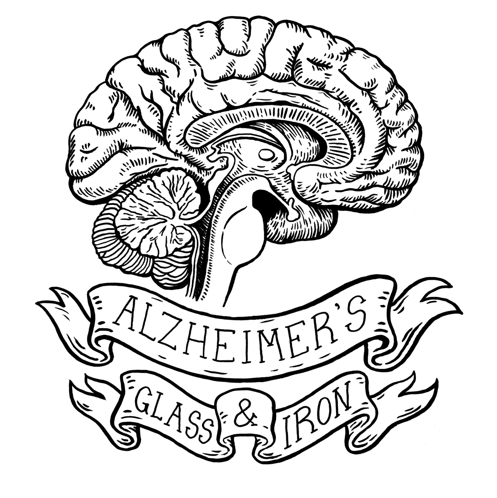 Alzheimer's Glass and Iron