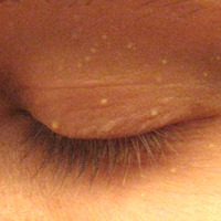 Swollen Eyelids  Causes and Treatment