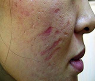 cara memuluskan kulit wajah yang berlubang