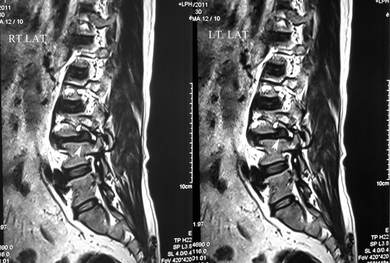 ideas about Spondylolisthesis on Pinterest   Leg pain  Calf     Pinterest
