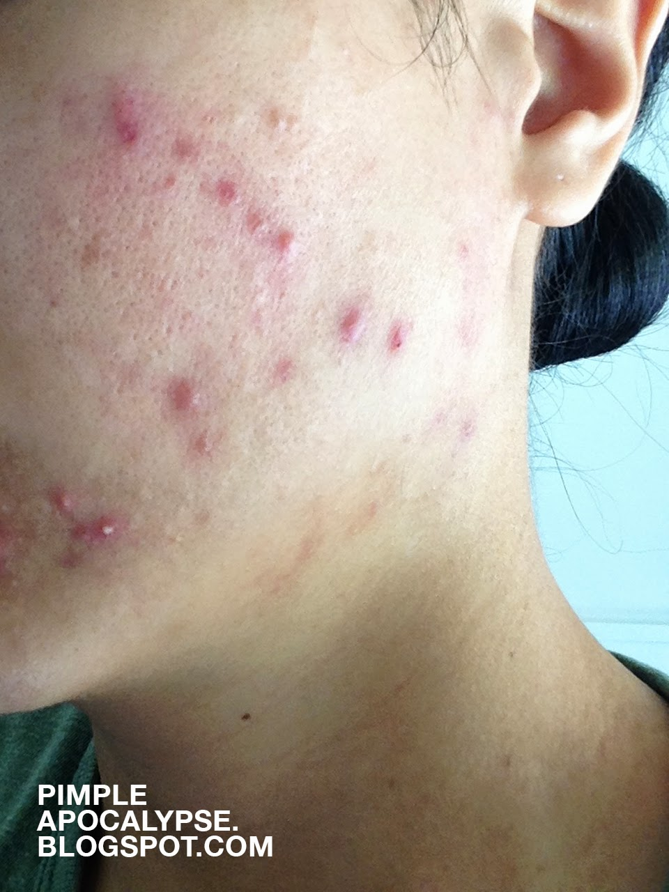 cystic acne, clogged pores, acne breakouts