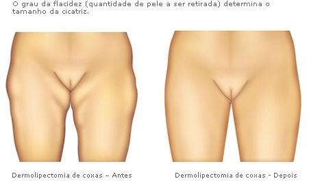 Proteína de serumal de respostas de perda de peso e resultados