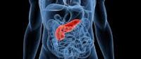 La pancreatitis es una inflamación del páncreas. La pancreatitis se produce más comúnmente después de un episodio de pancreatitis aguda y es el resultado de la inflamación en curso del páncreas .