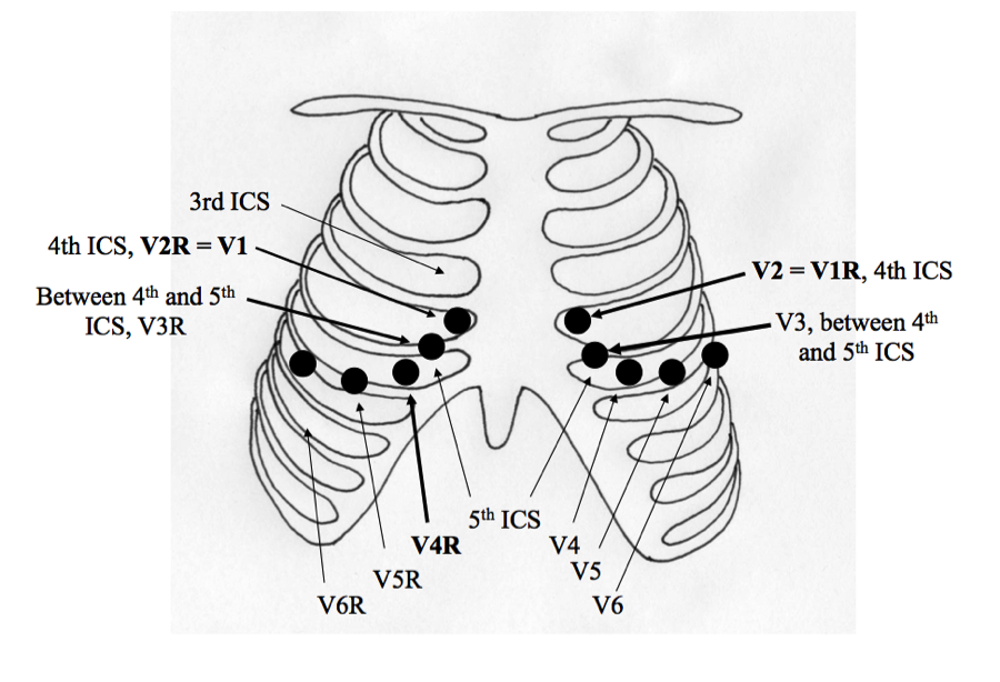 r sided ekg lead placement pictures to pin on pinterest