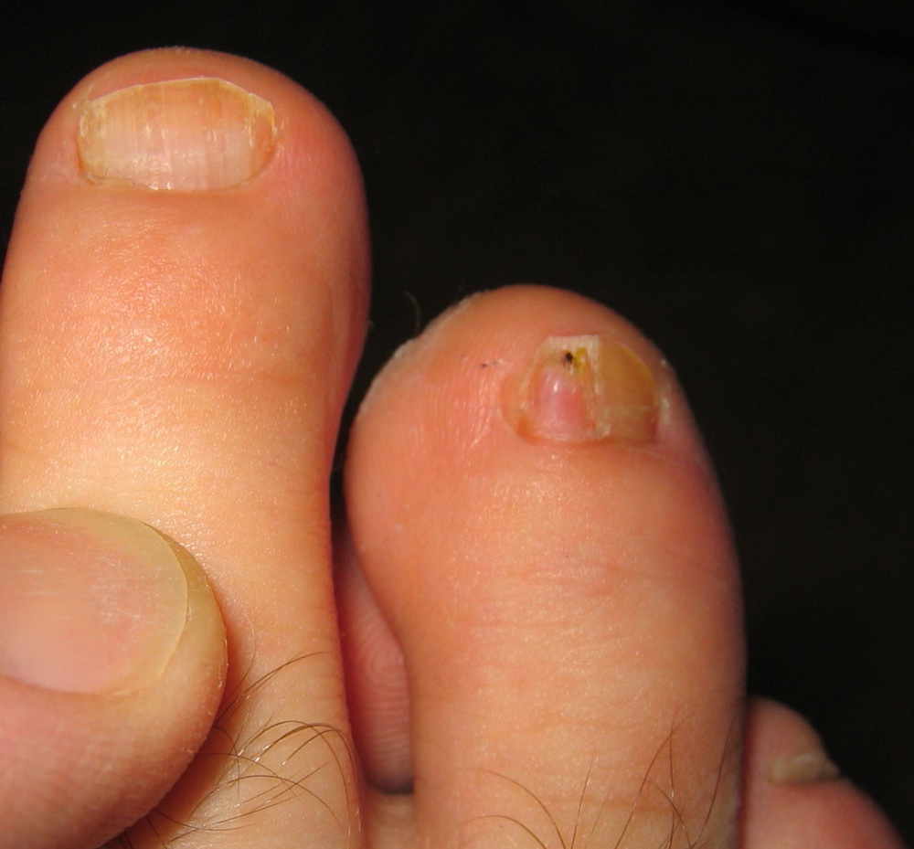 Fingernail Fungus Symptoms Pictures. Guitar Signs Of Stroke. The End Signs. Physical Appearance Signs Of Stroke. Female Smoker Signs. Guesthouse Signs. Gameday Signs Of Stroke. Overhydration Signs Of Stroke. Marry Signs Of Stroke