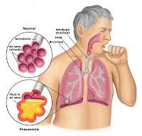 penyakit paru-paru, gejala infeksi paru paru