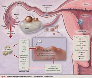 Obat Herbal Penyakit Kista Ovarium