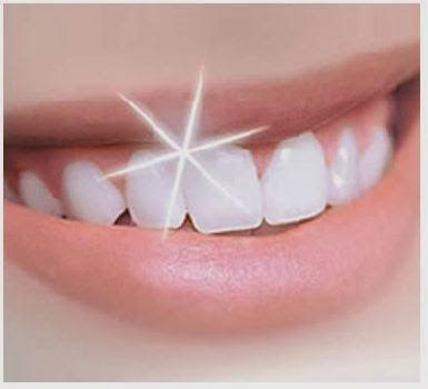 6 Tips Memutihkan Gigi Dengan Mudah Dan Berkesan