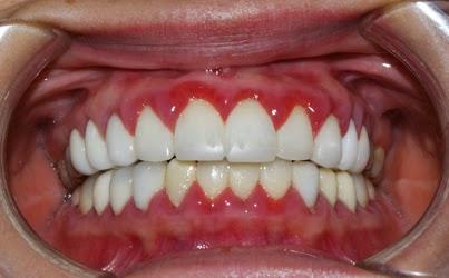nướu sưng đỏ khi bọc răng sứ