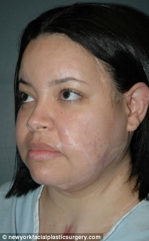 Ilianexy Morales, from New York, needed 17 surgeries, including one to