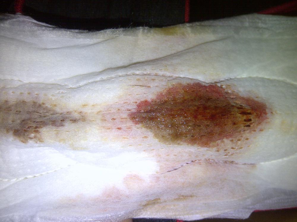 Keluar Contoh Bercak Darah Implantasi