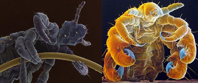 micrografias, ladilla, piojo,
