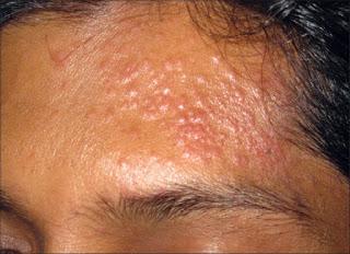 Informatii medicale despre lichen scrofulosorum