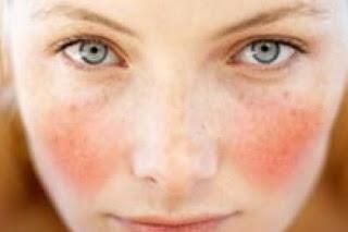 pelle sensibile, pelle con couperose, caratteristiche, trattamenti specifici per pelle sensibile