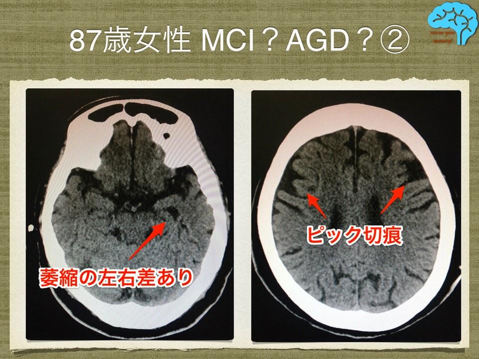 嗜銀顆粒性認知症の頭部CT。前頭側頭葉変性症との類似性あり。